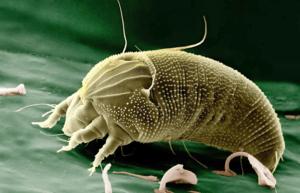 best parasite cleanse